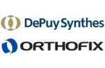 DePuy Synthes, Orthofix